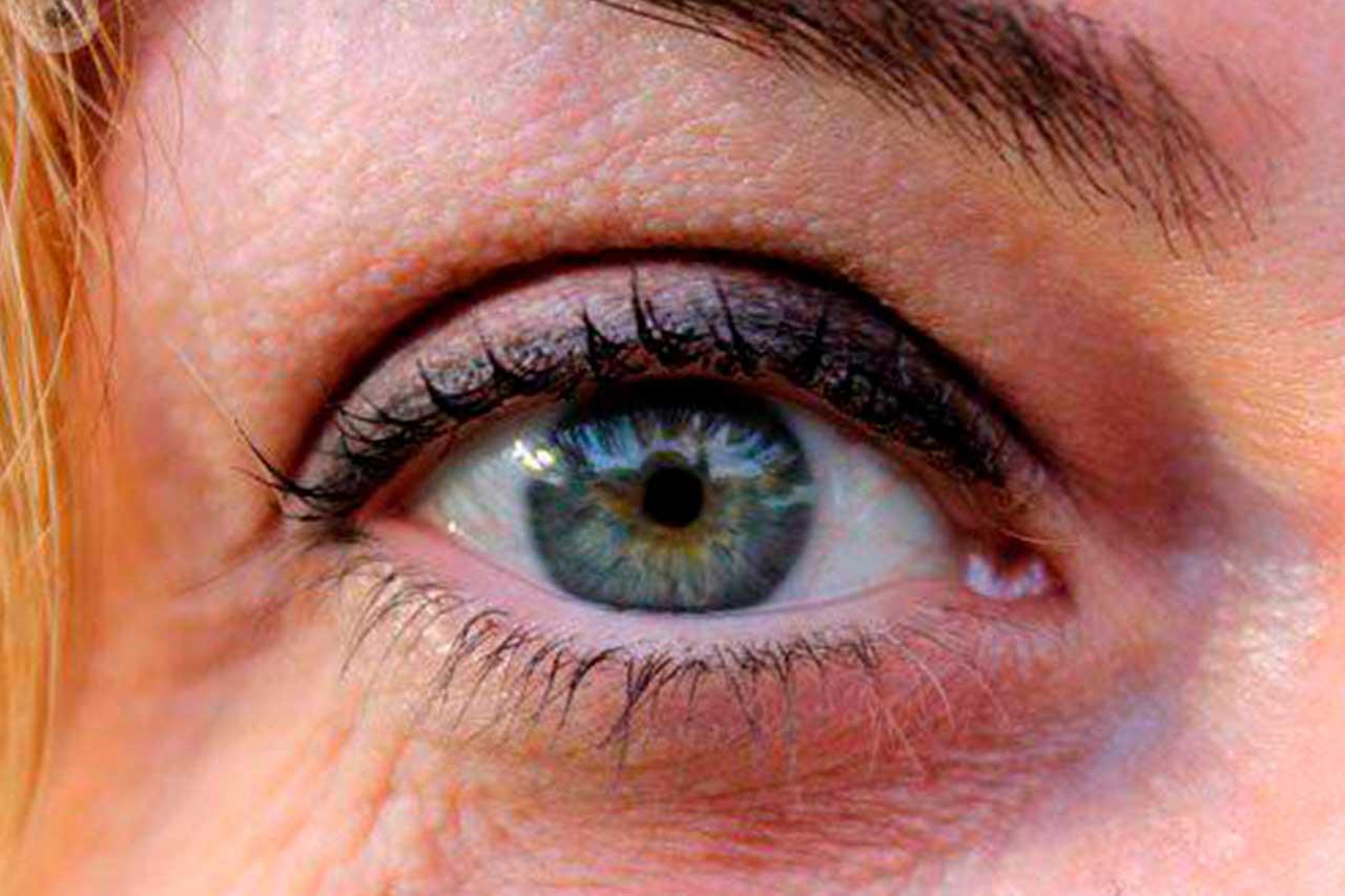 Esclerosis múltiple y neuritis óptica